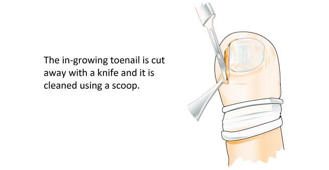 In growing toenails